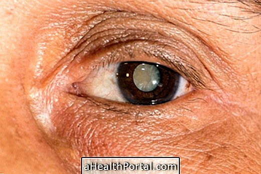 helyreállítja a látást szürkehályog után