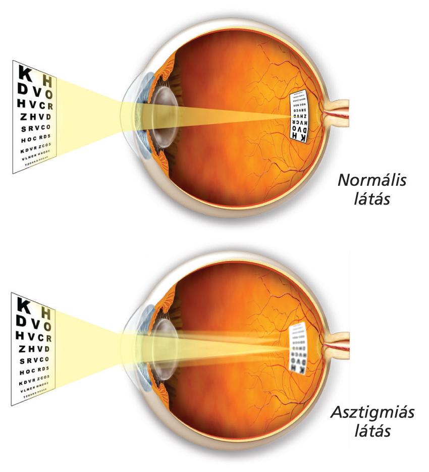csökken a látás korrekciójához)