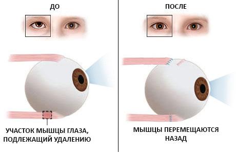 picamilon a látáshoz)