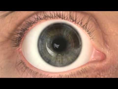 Lézeres látáskorrekció a szaruhártya vaszkularizációja érdekében - zuii.hu