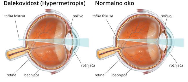 hyperopia oka)