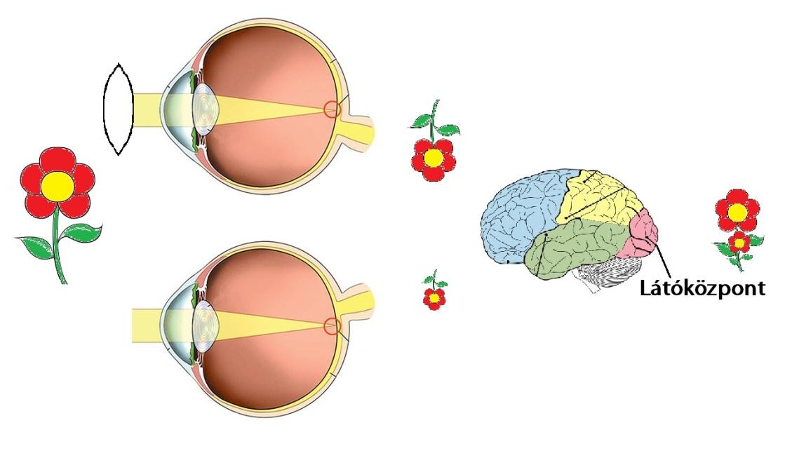 ha a látás jó vagy rossz