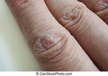 látásélesség az ujjakon)
