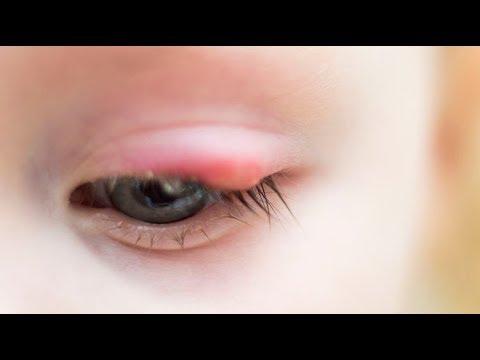 a gyengénlátó szemek gyakorlása