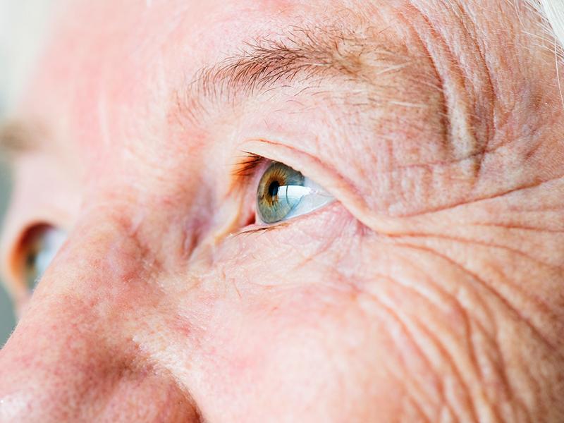 a fogyatkozás során károsodott látás)