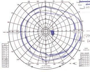 hogyan készítsünk egy táblázatot egy szemvizsgálathoz