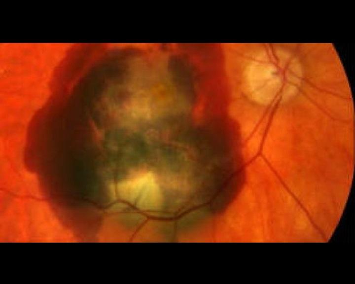 hogyan állítják meg a látást