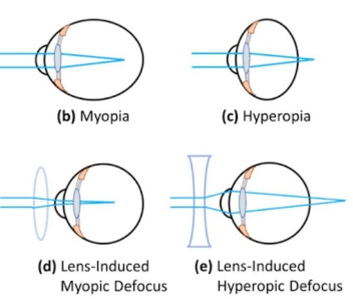 Mi a hyperopia és hogyan definiálható?, különbség a vr fejhallgatók között