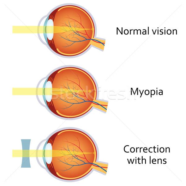 myopia fotó)