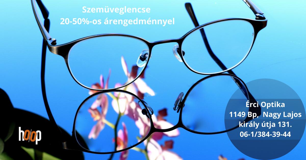 egészséges látás