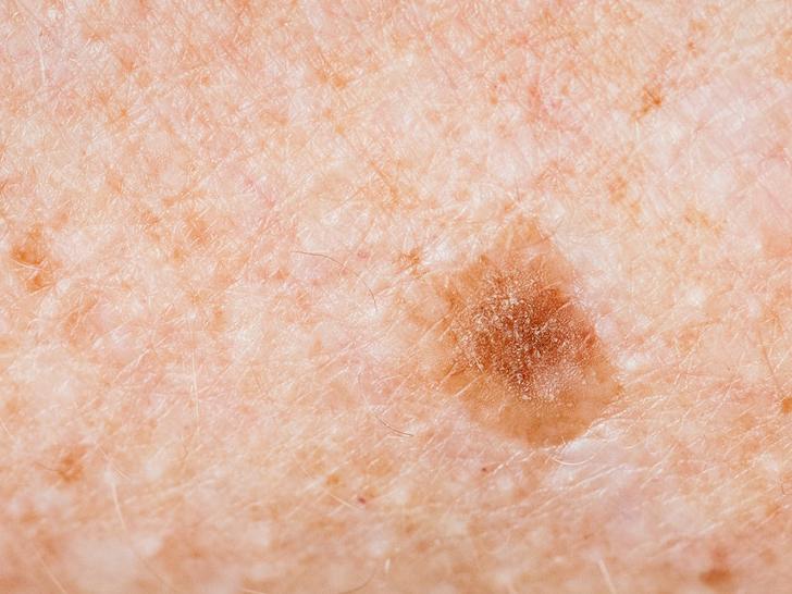 hová menjen a melanoma gyanúja esetén
