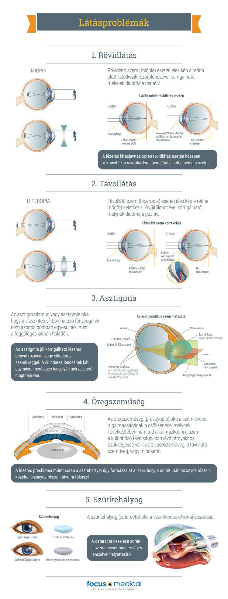 Valódi látásjavító eredmények