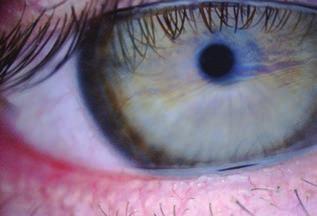 Vision Látás helyreállítás