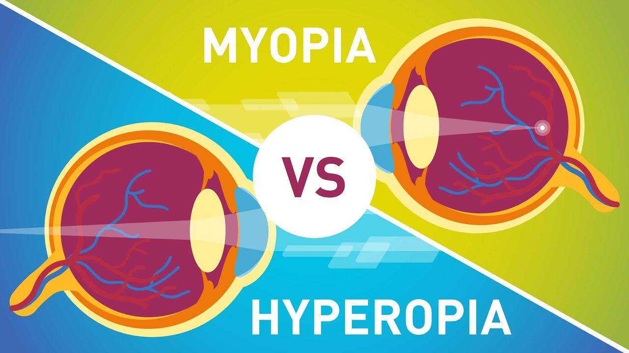 rövidlátás és hyperopia vagy myopia)