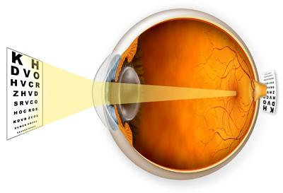 progresszív hyperopia agyi bénulásos látáskezelés