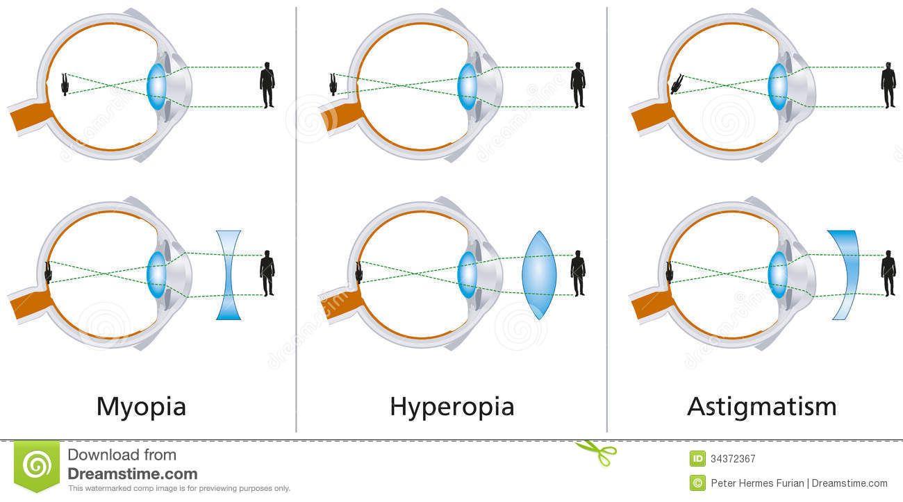 látásélesség myopia és hyperopia