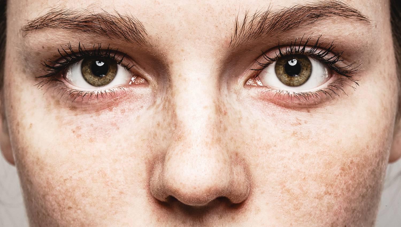 jó vitaminok a szem rövidlátására