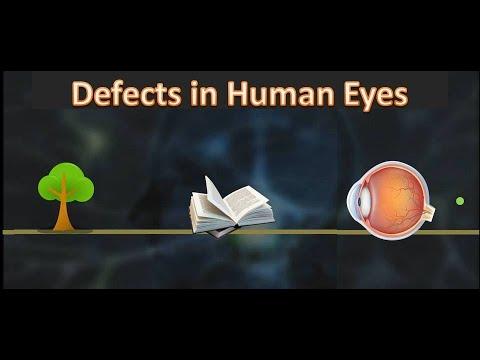 látás skála hyperopia