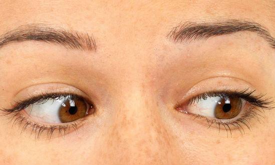 Diagnózis: háttér retina angiopathia. Olyan szindróma, amelyet nem lehet figyelmen kívül hagyni