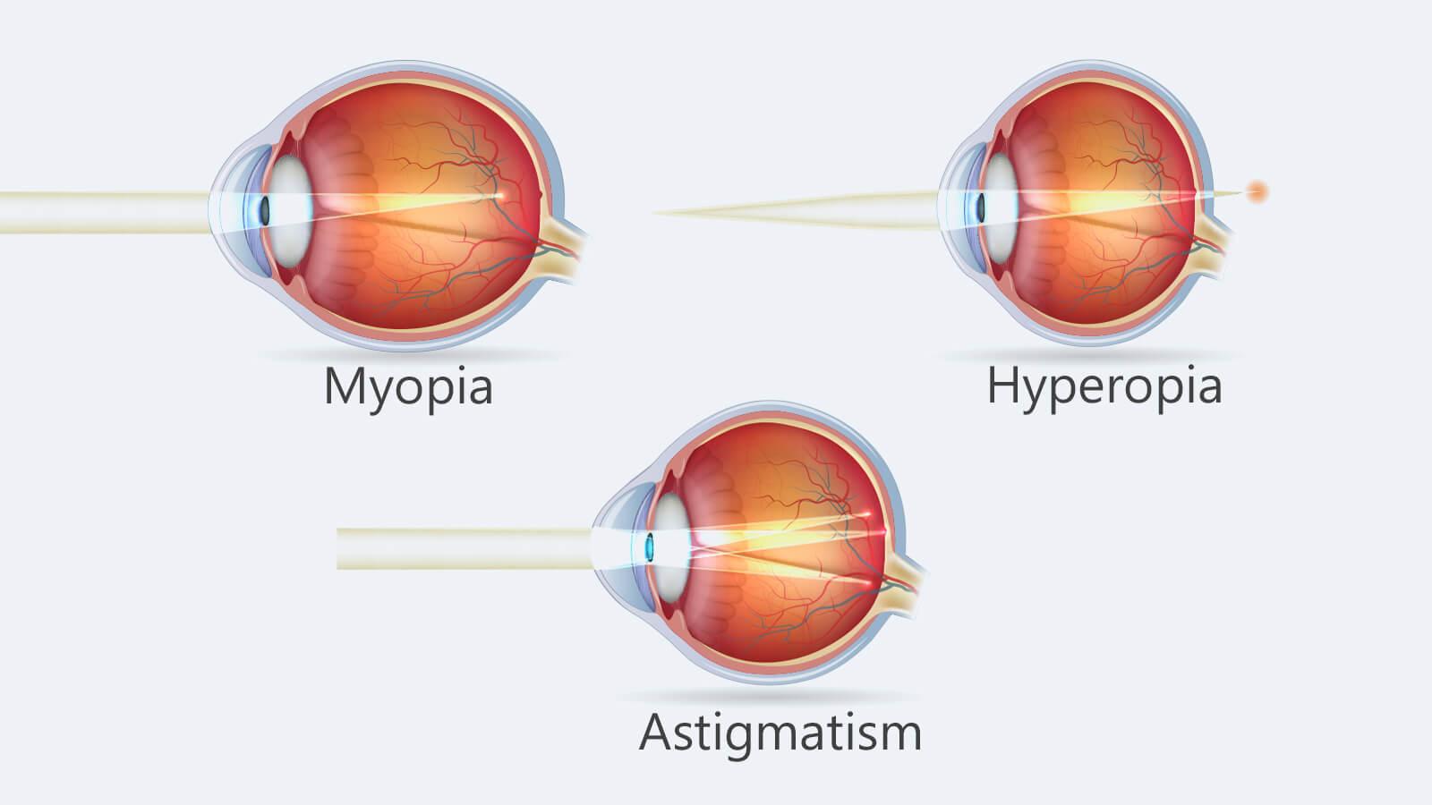 asztigmatikus hyperopia