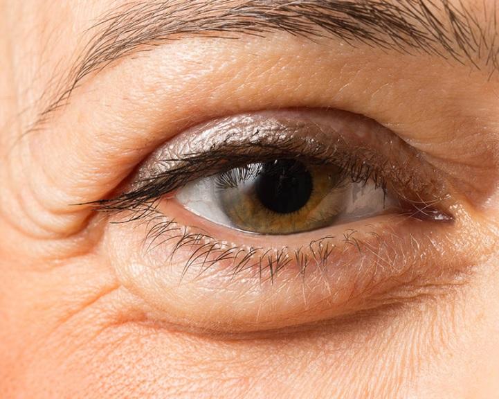 6 gyakorlat a látás helyreállításához