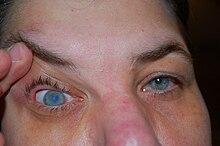 miért eshet el az egyik szem látása)
