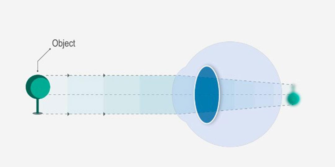 Az életkorral összefüggő hyperopia kezelése, A myopia idős korban alakul ki