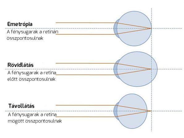 rövidlátás az egyik szemben, ahogy nevezik a látás elsőbbsége