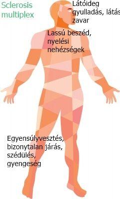 Homályos látás & Szédülés & Szédülés és gyengeség: okok – Symptoma