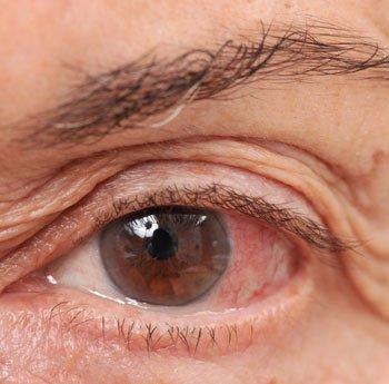 elveszíti az egyik szem látását mély látássérülés