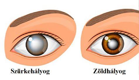 a látás romlott, a szemek fájtak