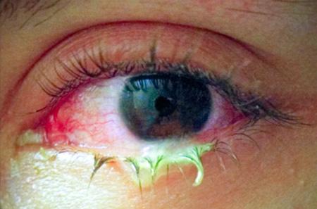 látókörök a szem előtt