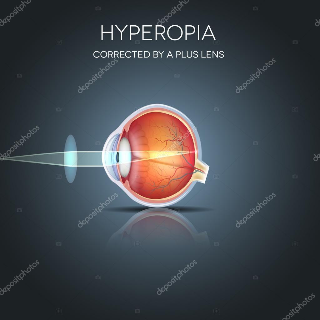 hogyan ellenőrzik a hiperopia)