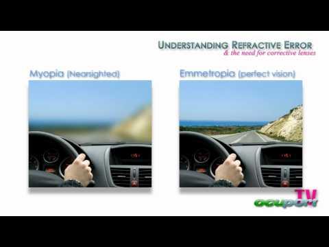 mi javíthatja a látást szürkehályoggal)