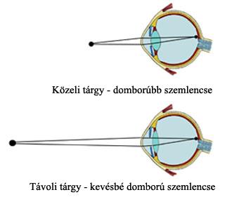 alakú látás az)