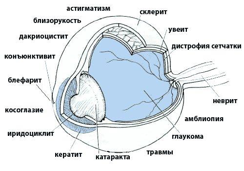 látáskorrekció látóideg atrófia esetén