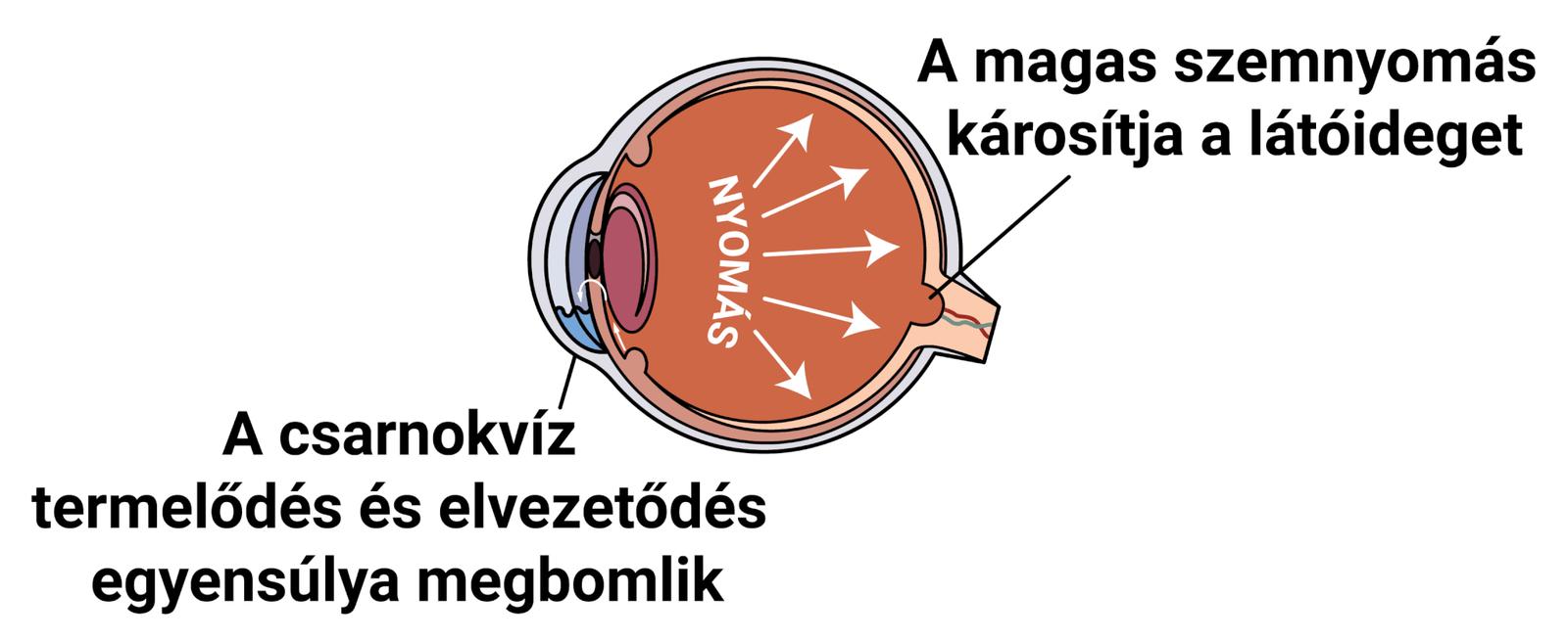 a szem körforgása után a látásélesség romlott)