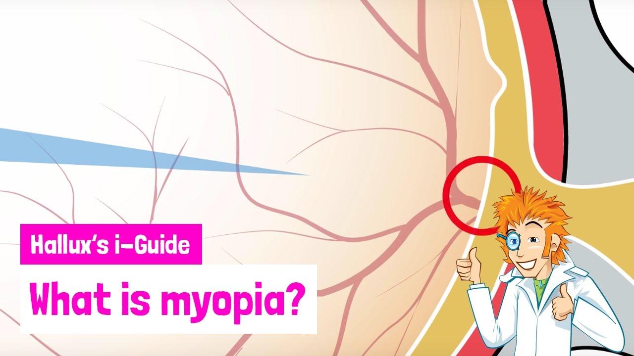 myopia táblázat nézet)