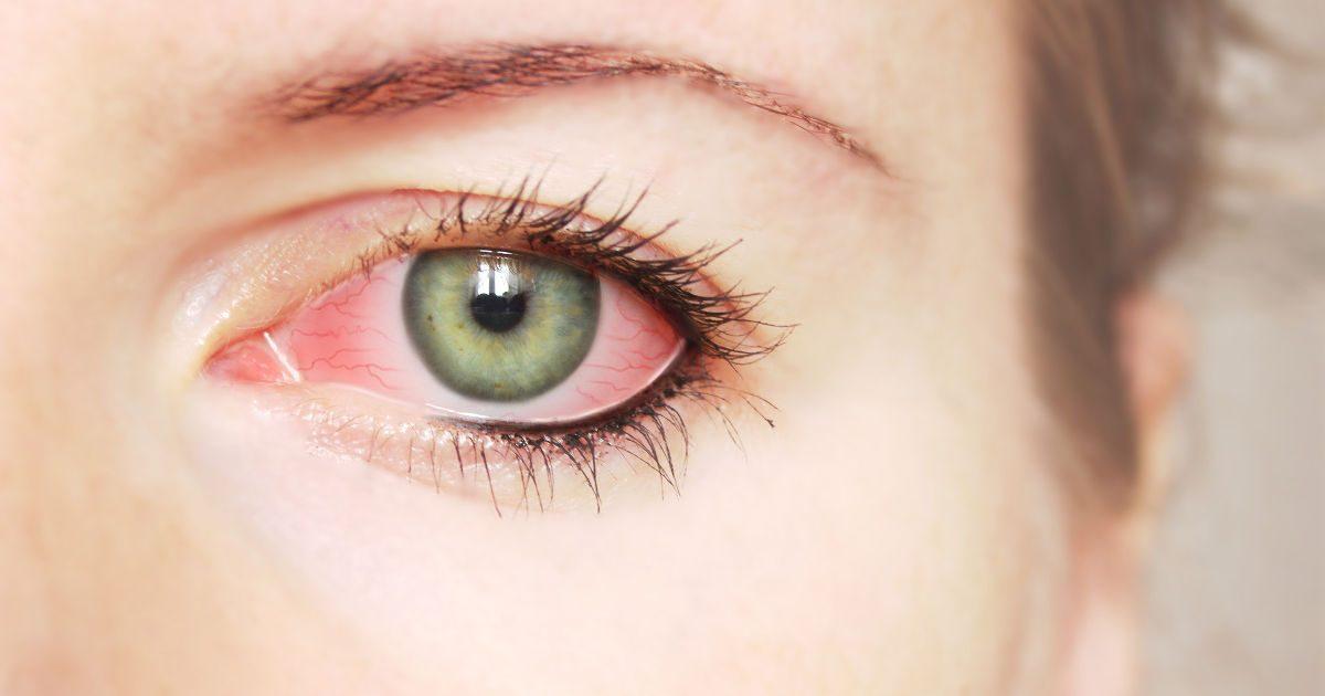 kötőhártya-gyulladás hatása a látásra)