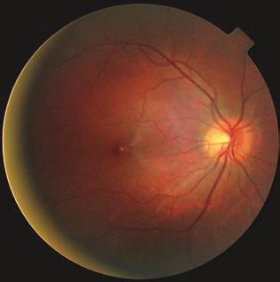 tubuláris látás glaukómában