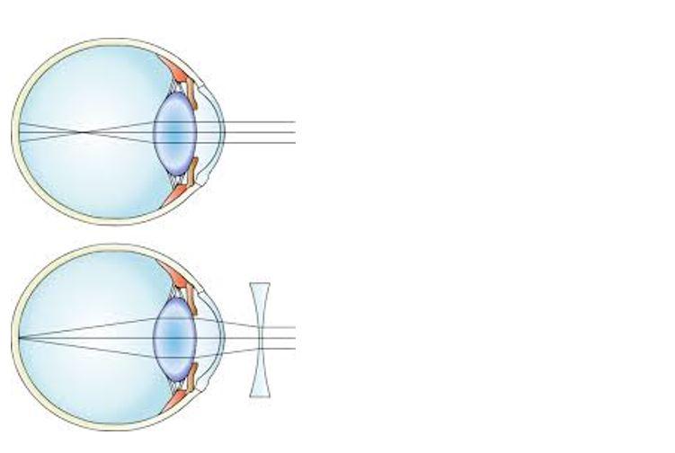 Mi a hyperopia?, mi a különbség a myopia és a hyperopia között?