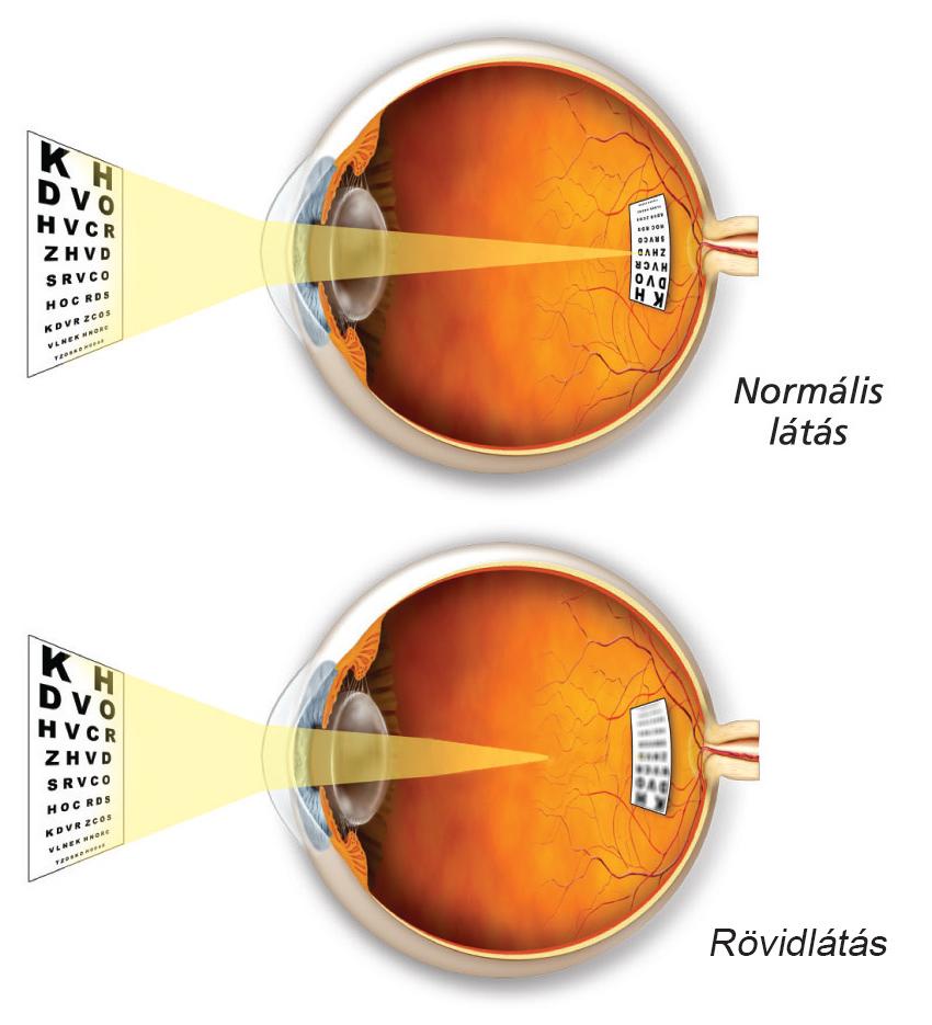 Normális látás és rövidlátás
