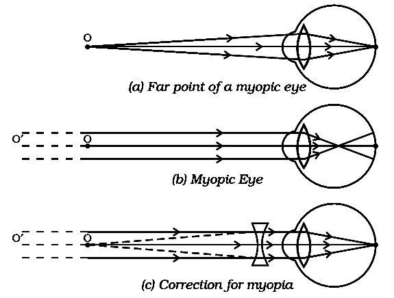hogyan lehet kiszámítani a látást egy táblázatból hogyan állítsam vissza a látásomat 8