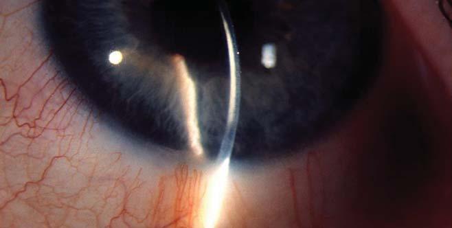 protokoll myopia keratitis astigmatizmus szürkehályog)