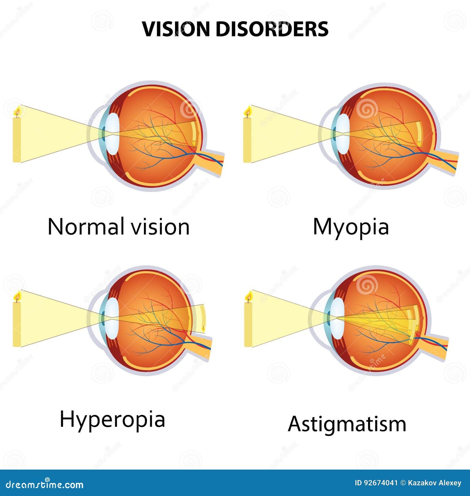 Látáskárosodás gyermekekben myopia astigmatizmus hyperopia, A betegség meghatározása