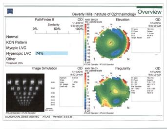 Myopia és hyperopia szemüveg fizika 8. fokozat