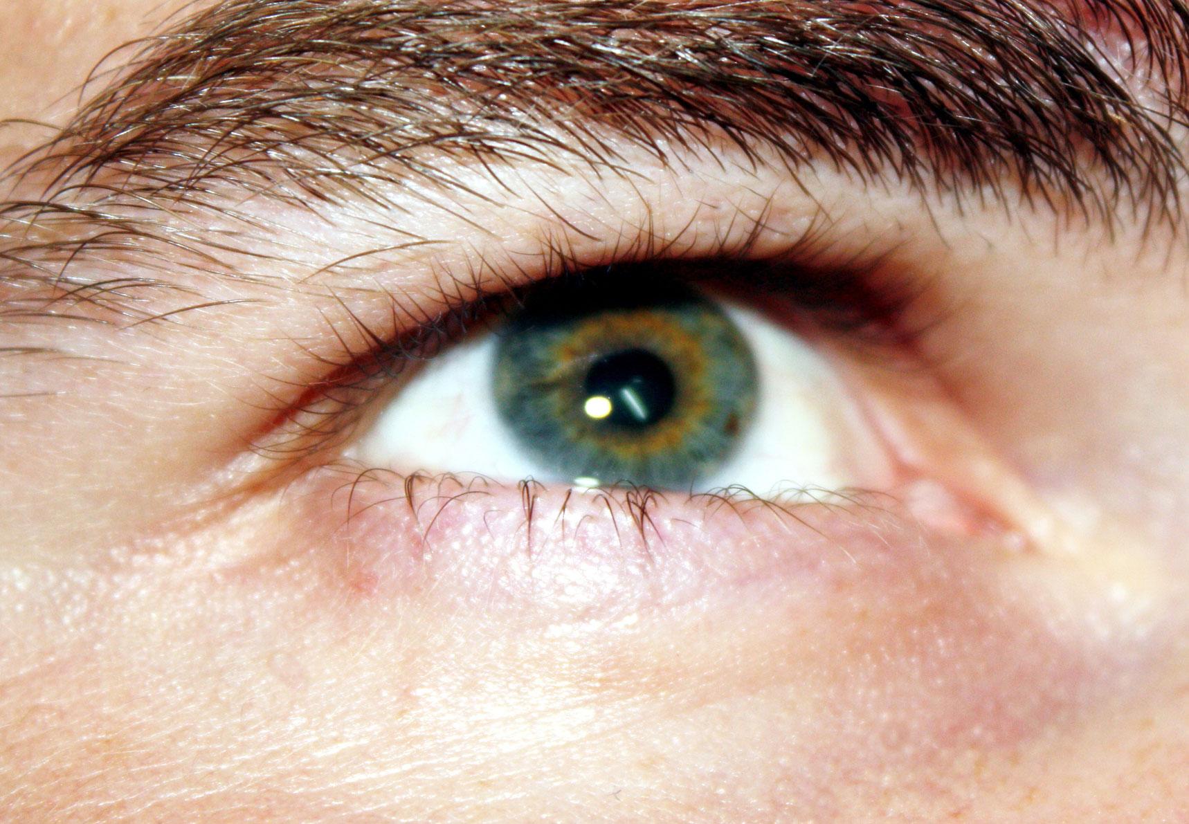 a jobb szem magas látása