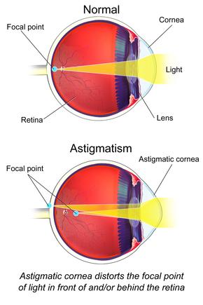 asztigmatizmus teszt diagram