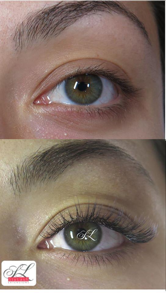 myopia kezelés atropinnal