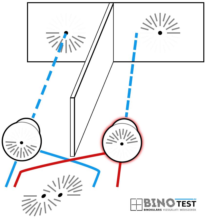 normál látás-látás teszt diagram)